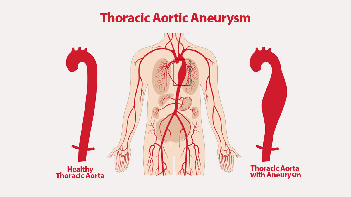Can You Live with a Thoracic Aortic Aneurysm?
