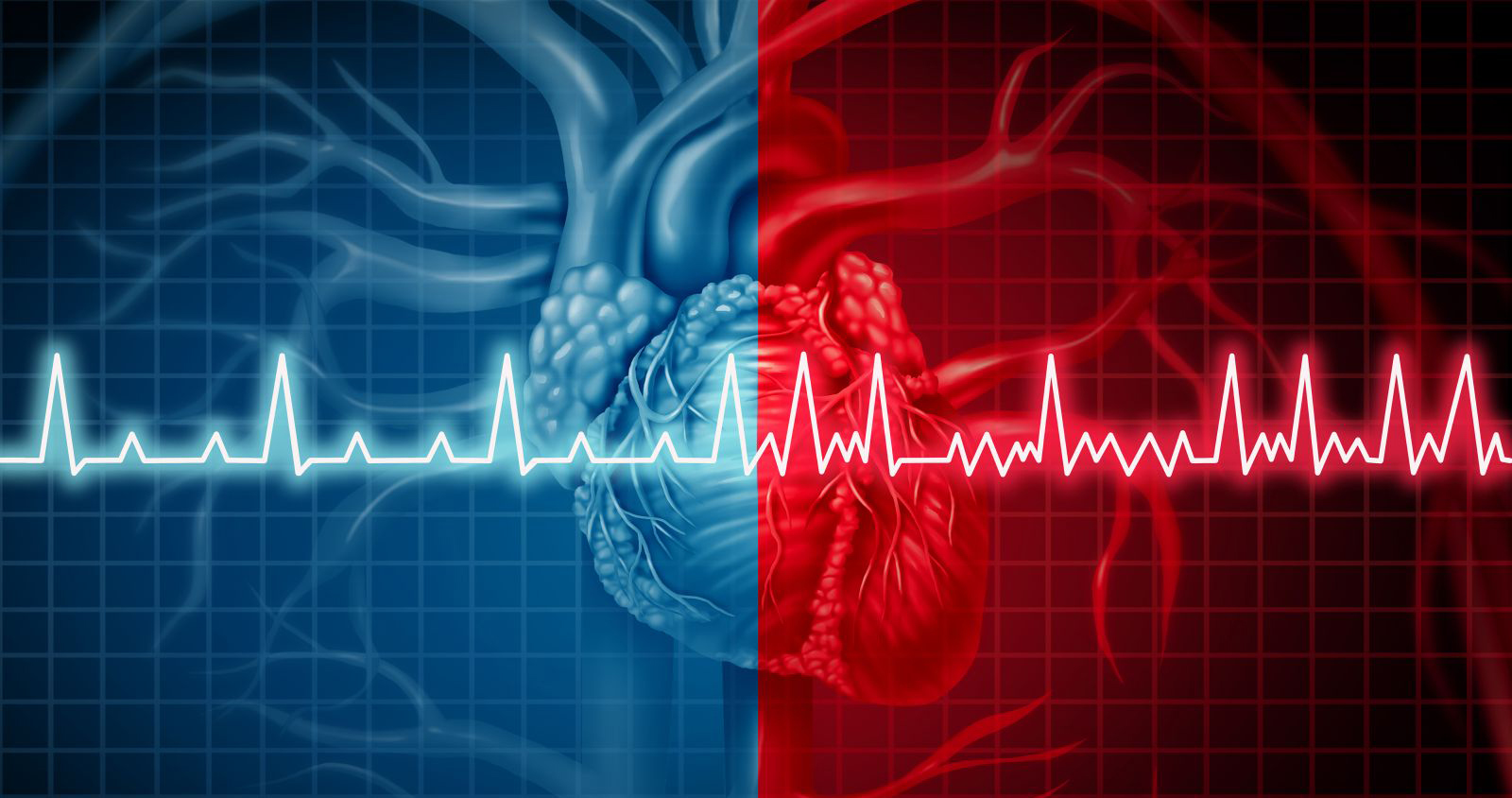 Does Atrial Fibrillation Cause Heart Failure?